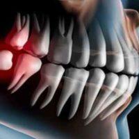 Сенсационное открытие калифорнийских стоматологов – зубы могут вырасти в любом возрасте!