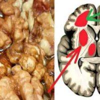 5 рецептов для очищения сосудов головного мозга!